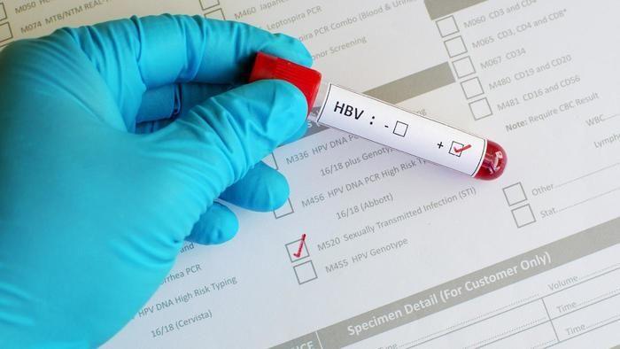 Anti Hbs là gì? Ý nghĩa của xét nghiệm Anti HBs?