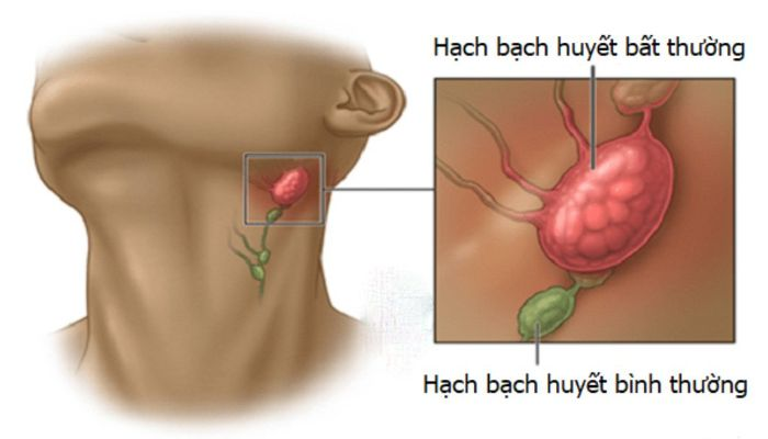 Hình 2: Sưng hạch bạch huyết ở người nhiễm HIV