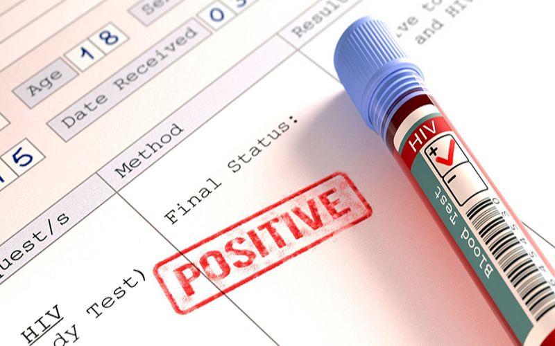 Hình 3: Kết quả xét nghiệm HIV dương tính