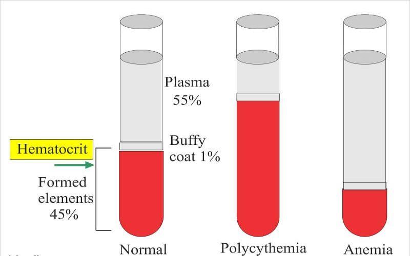 Hình 4: Khi chỉ số Hematocrit tăng cao hay hạ thấp đều bất thường